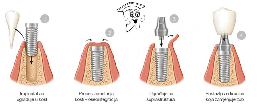 implantat postupak ugradnje